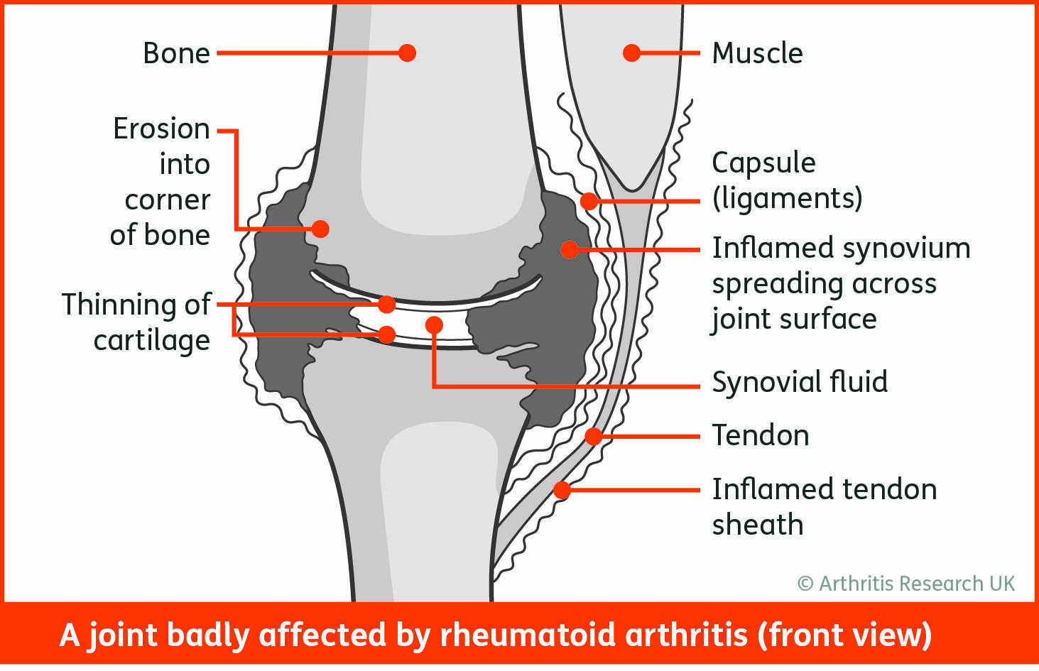 The Stages of Rheumatoid Arthritis
