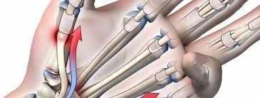Rheumatoid Arthritis Tendons