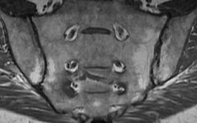 Imaging in Rheumatology – MRI for AxSpA