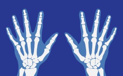 What is Rheumatology?