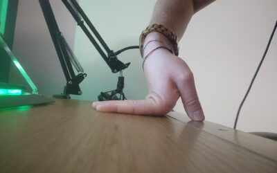 Hypermobility, Instability Misconceptions
